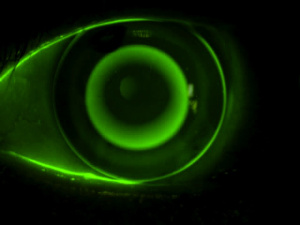 Control de la miopia 2[18166]